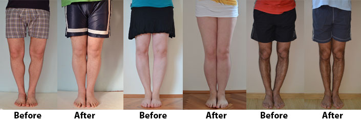 Bow Legs No More Before And After